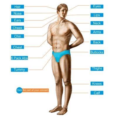 body-lift