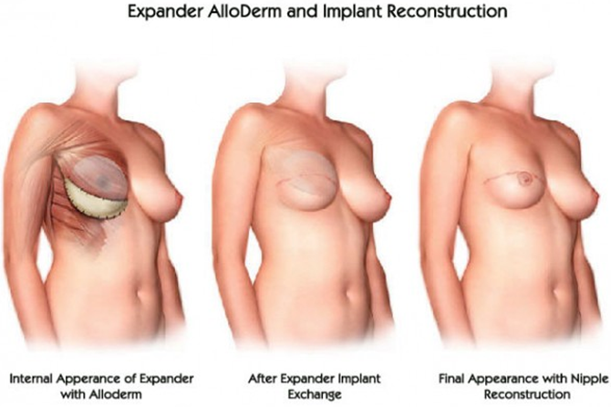breastimplantrevision