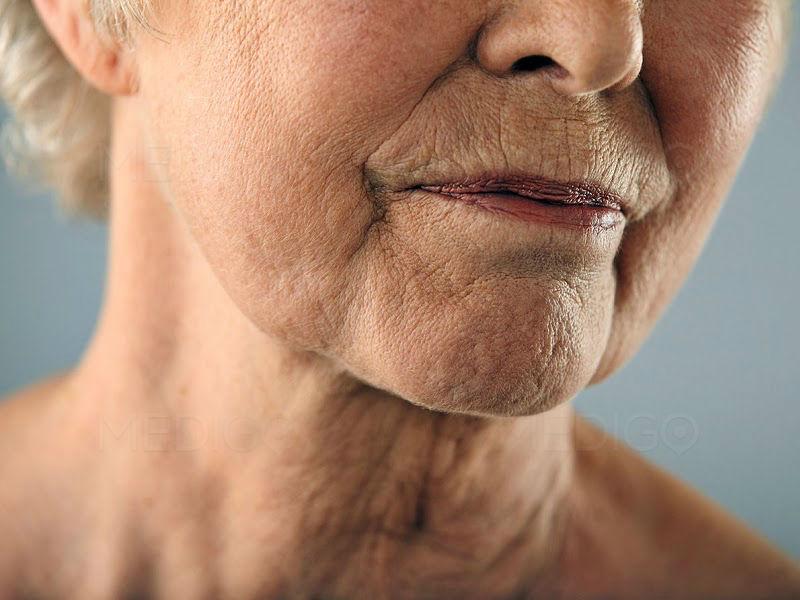 wrinkle-treatment