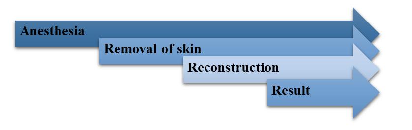 Skin Cancer Removal Procedure