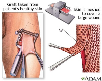 Skin Grafting and Flap Surgery