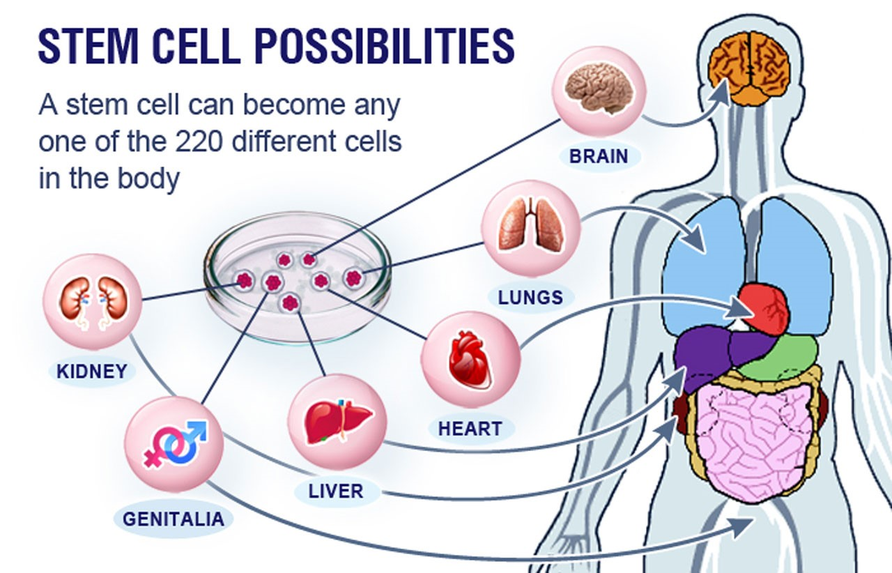 Stem Cell Treatment
