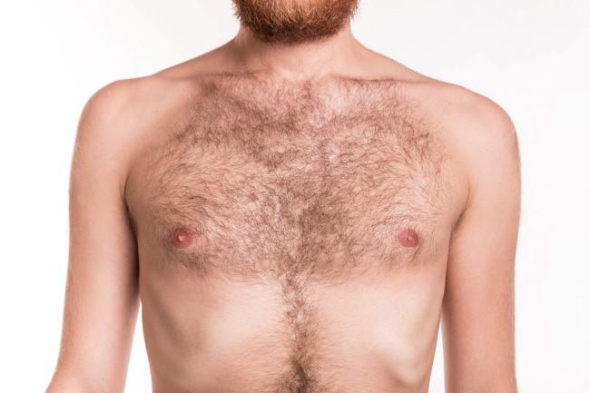 body hair