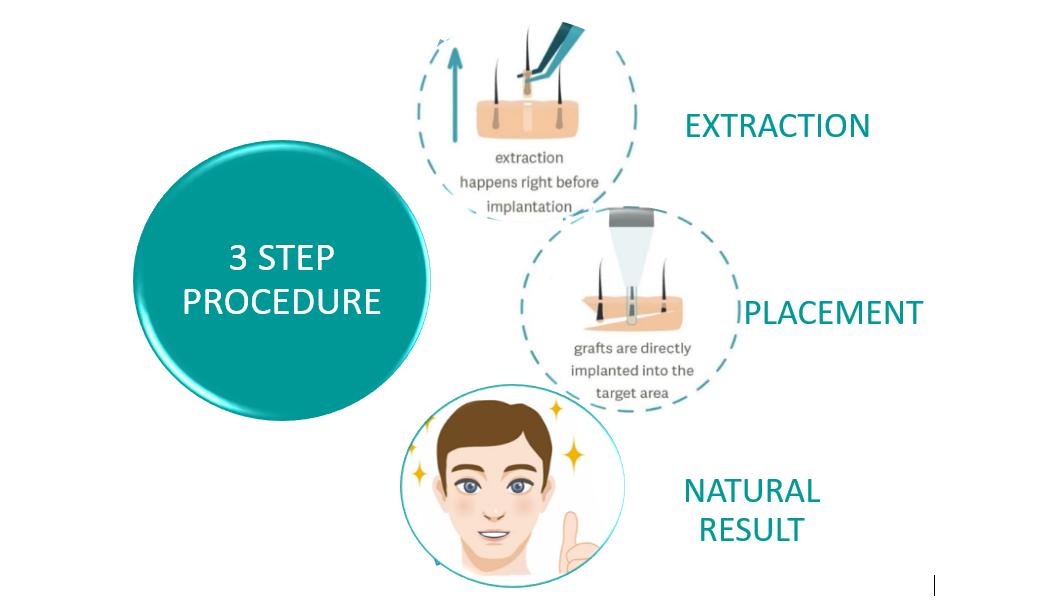 STEP PROCEDURE OF DHI