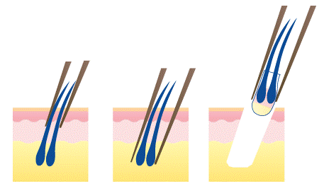 Extraction of grafts in FUE