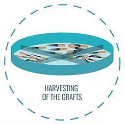Harvesting of the Grafts