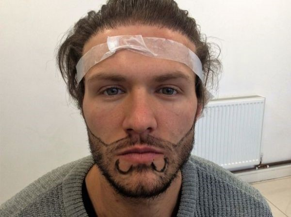 Beard and Moustache Hairline Designing