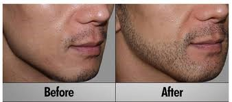 Duration for regrowth of implanted hair