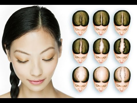 Female-hair-loss-overview