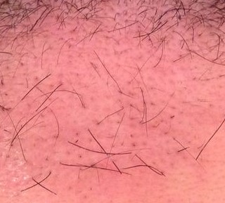 After Hair Transplant 2 months to 3 months