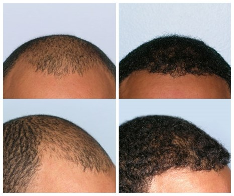 FUE Hair Transplant (Before/After)