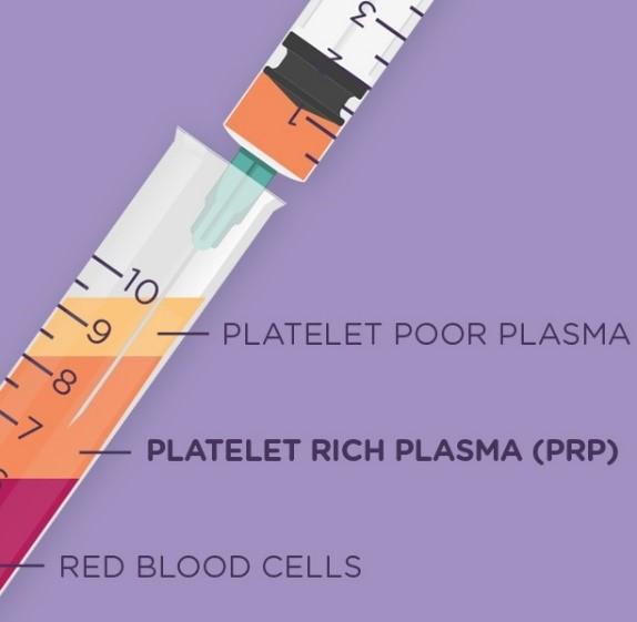 Extract platelet rich plasma