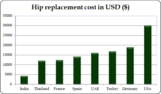 Hip replacement surgery cost in other countries