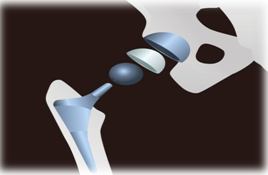 What is hip replacement?