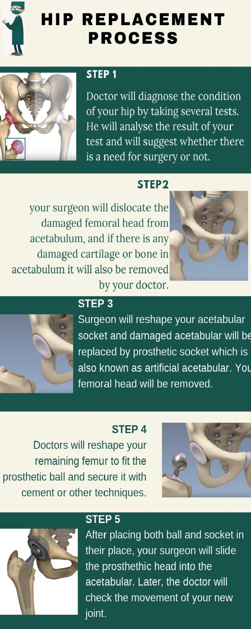 Hip Replacement process