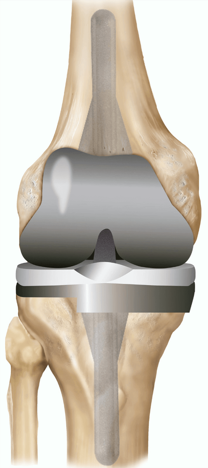 Revision or Complex knee replacement