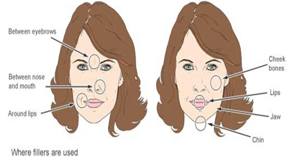 About cosmetic procedures- Cost, Procedure, Experts
