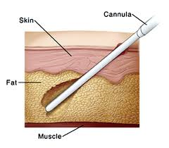Liposuction in India