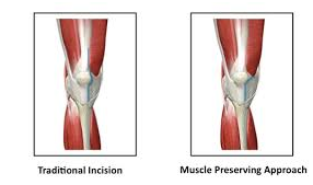 What are the current improvements in knee replacement surgery?
