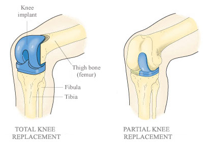 Types of Knee replacement surgery