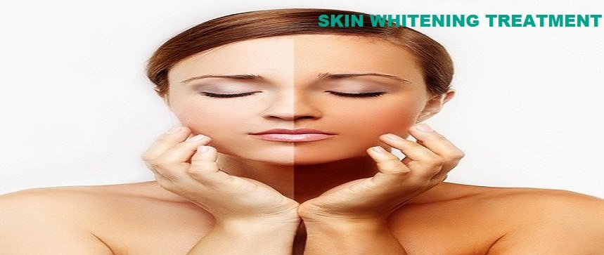 Skin Whitening Treatment in Delhi
