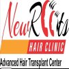 New roots hair clinic & advanced hair transplant centre