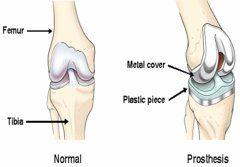 Risk involved in knee replacement surgery