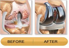 Advantages of Knee replacement surgery?