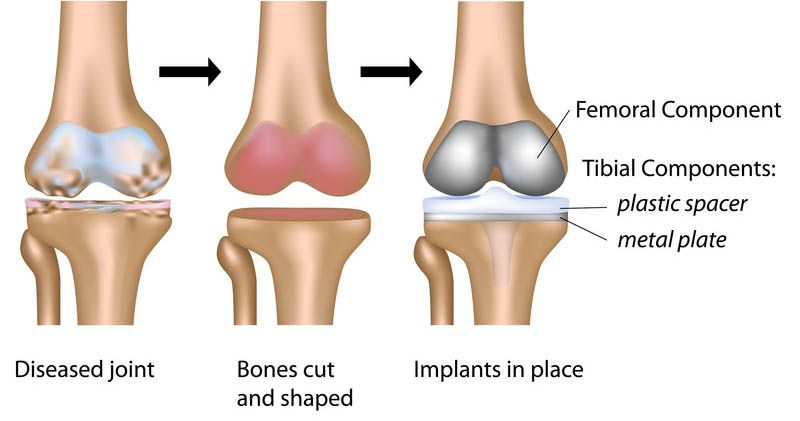 What is the cost of knee replacement surgery in Jaipur?