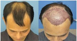 Ranchi Hair Transplant
