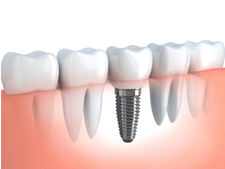Procedure involved in Dental Implant