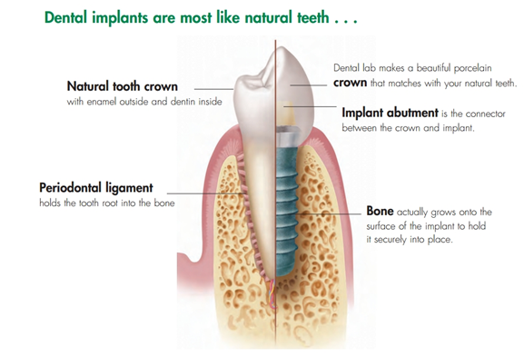 How does a dental implant work?