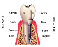 Dental implant Hyderabad
