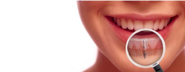 Dental implant Mumbai