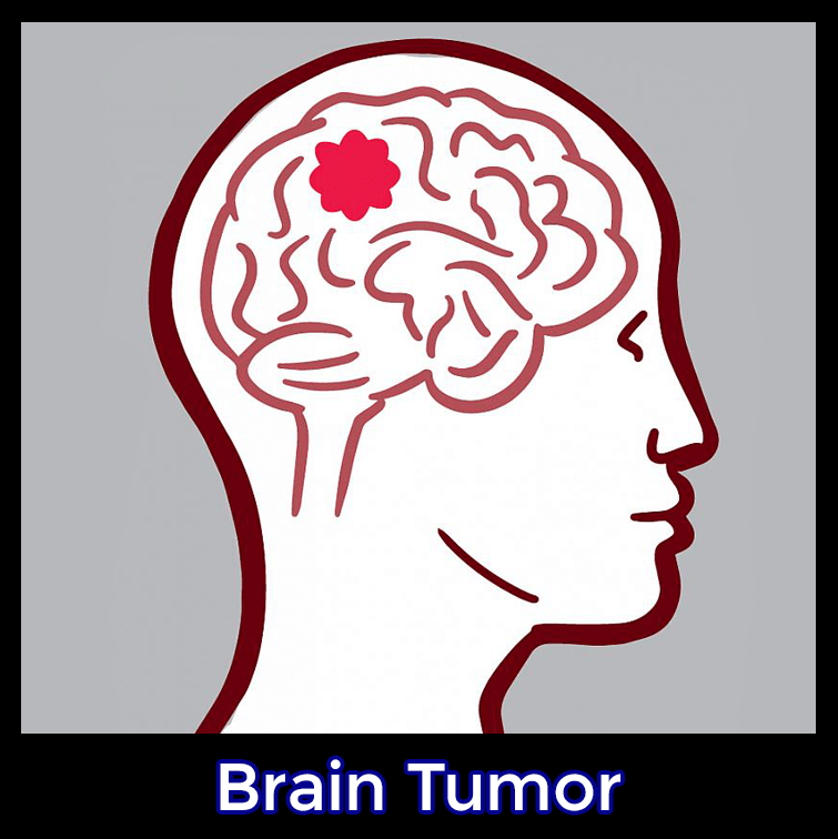 Brain tumor cancer