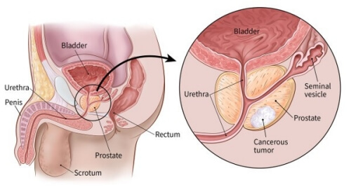 prostate-cancer