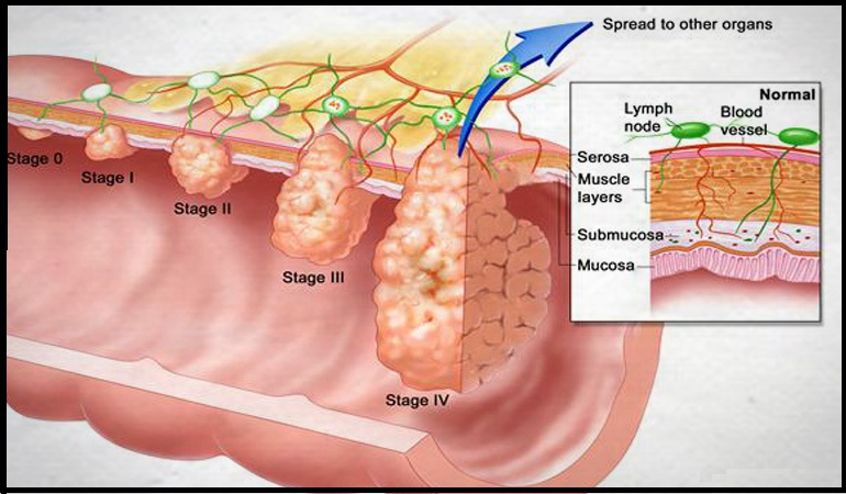 Stage wise colon cancer treatment in India