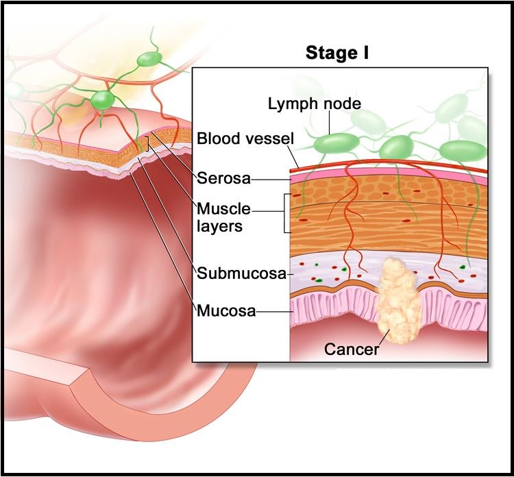 Stage 1 Colon cancer