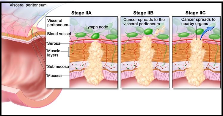 Stage 2 Colon cancer