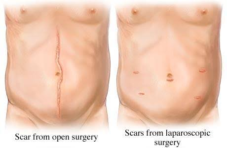 Laparoscopic and Robotic cancer surgery vs Open surgery