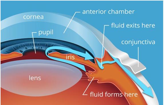 Causes Glaucoma