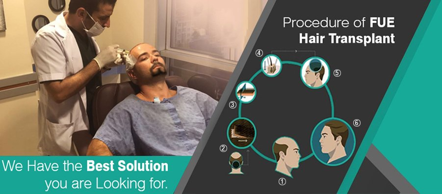 FUE Hair Transplant in Lucknow