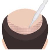 DHI Hair Transplant Technique