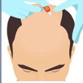 PRP Hair Transplant Technique