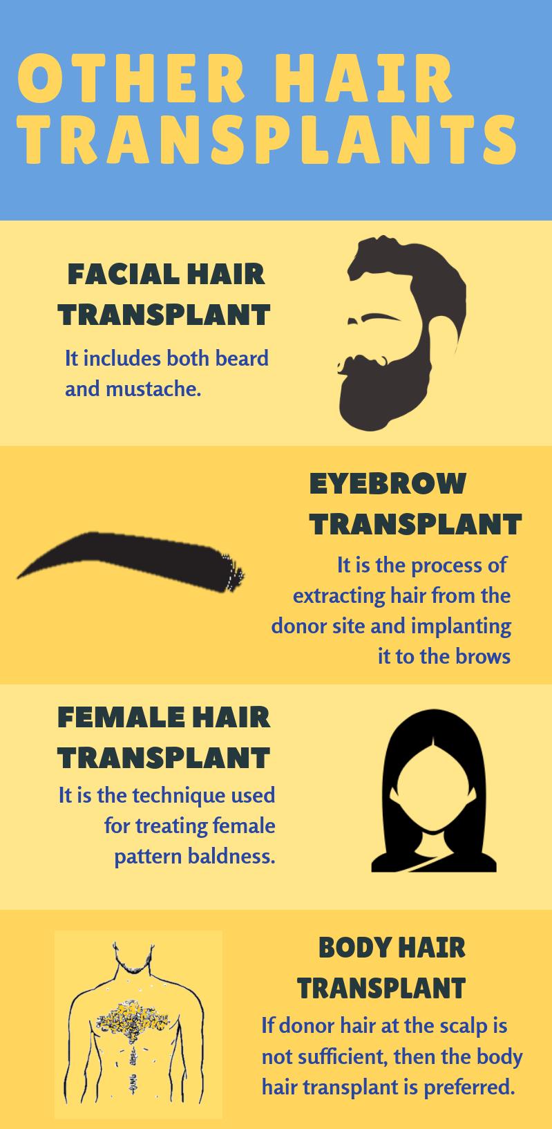 other-transplants