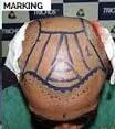 Surgery Process