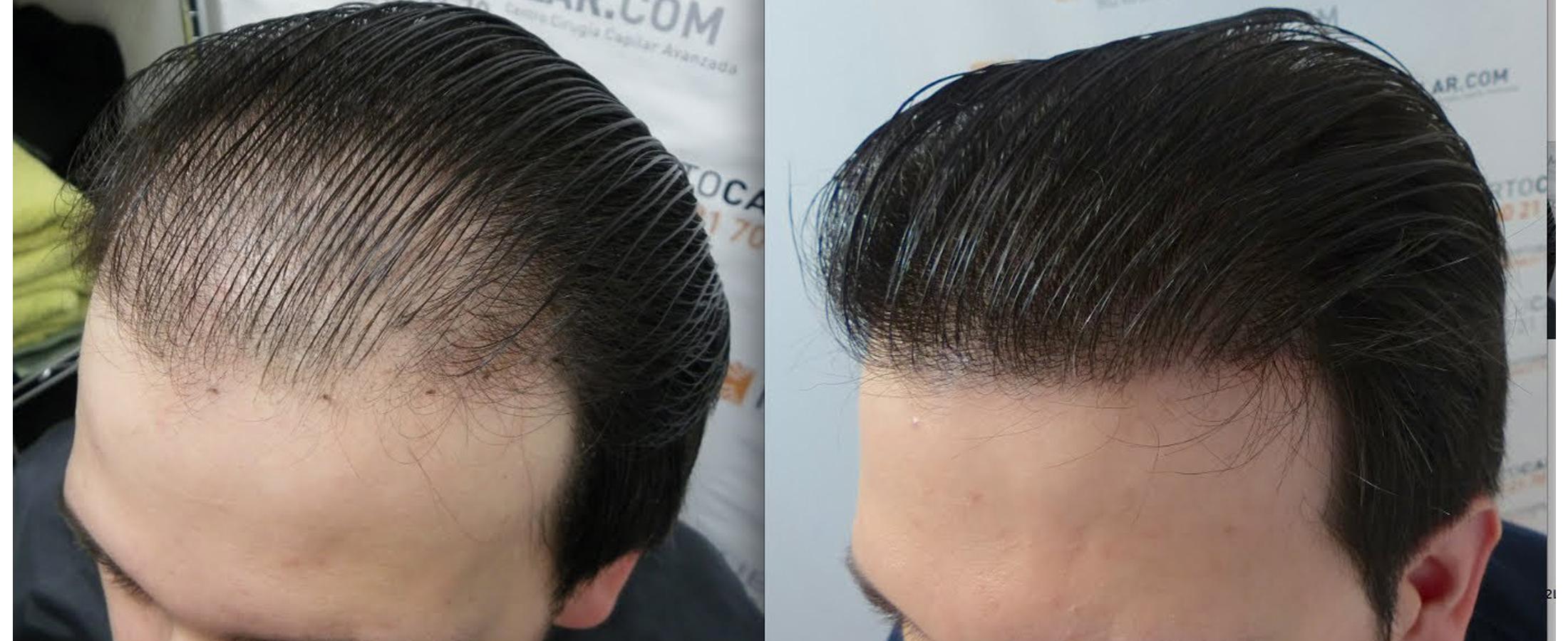 hair-transplant-in-jaipur