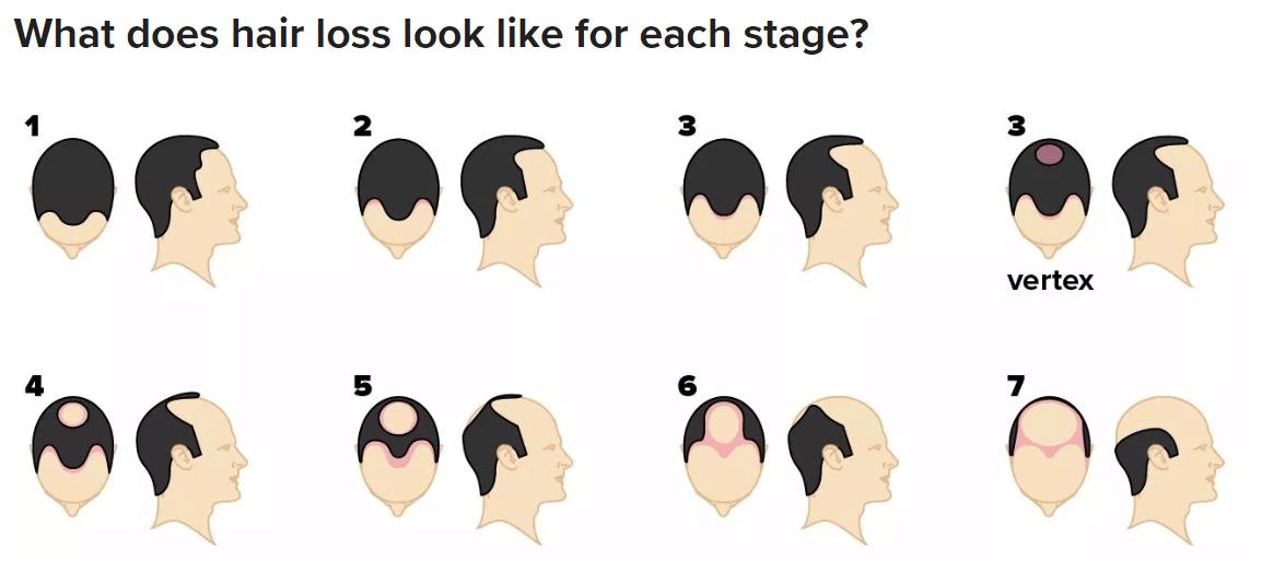 Grade of Baldness