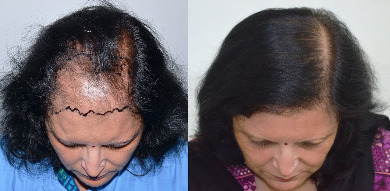 Before & After Hair Transplant