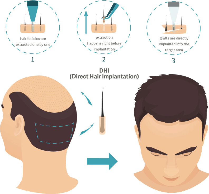 DHT (Direct Hair Transplantation)/ DHI (Direct Hair Implant) Technique used in Delhi